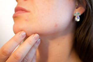 hoe kan je acne voorkomen